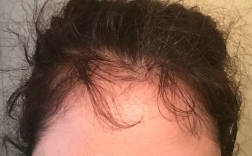 Hair loss around the forehead