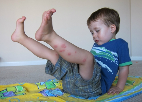 Child with mosquito bites doing yoga