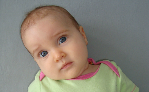 baby with torticollis
